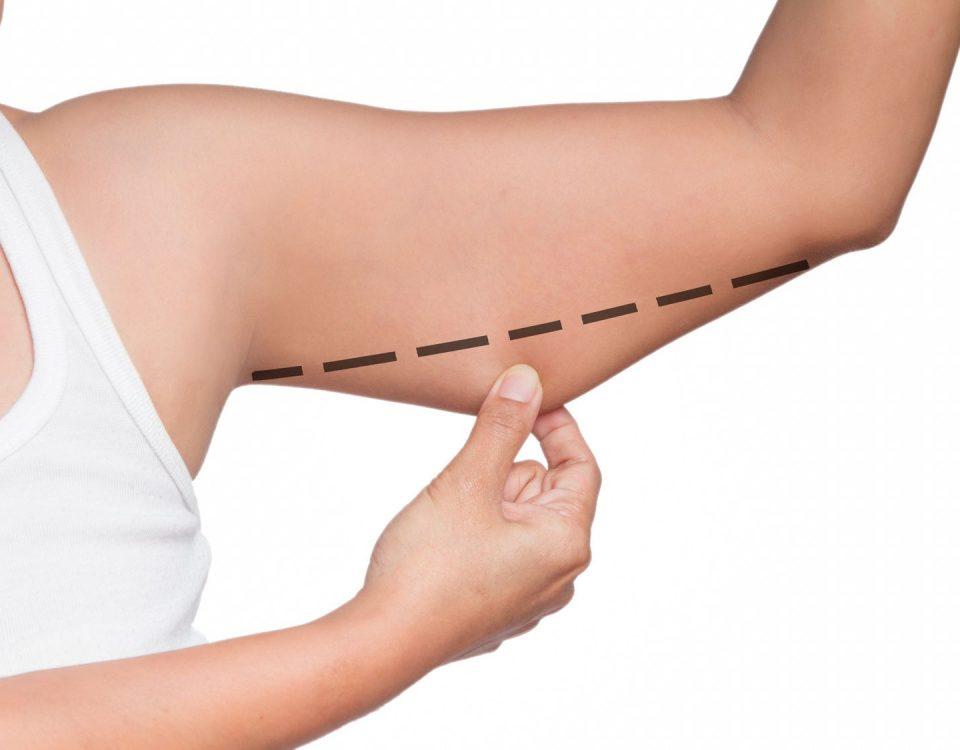 Liposukcja bez skalpela - medycyna estetyczna kosmetyka laserowa
