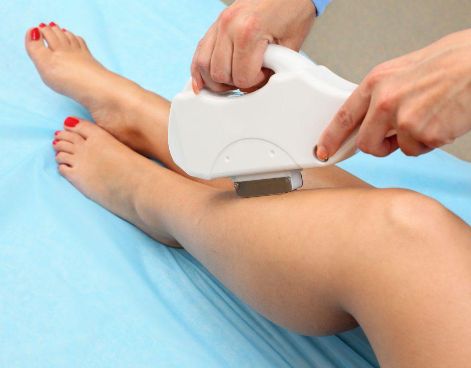 Laserowe usuwanie owłosienia Toruń -depilacja laserem medycznym